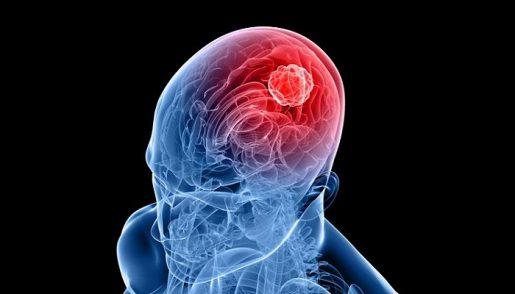 glioma-mozga