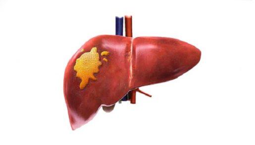 hepatocellular-carcinoma