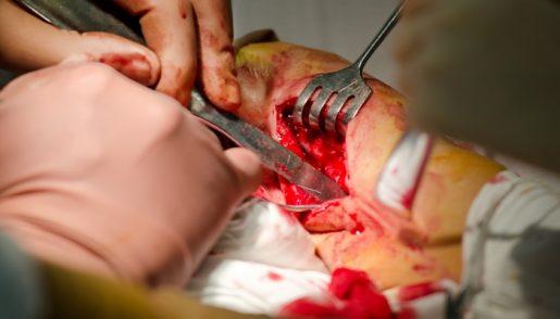 surgicalpain