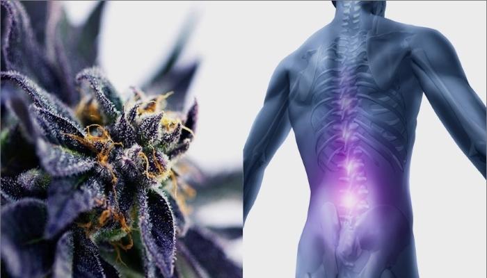 Медицинская марихуана и хронические боли в спине