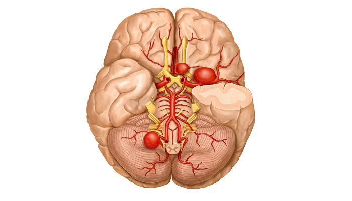 Роль каннабиноидов в лечении аневризмы головного мозга