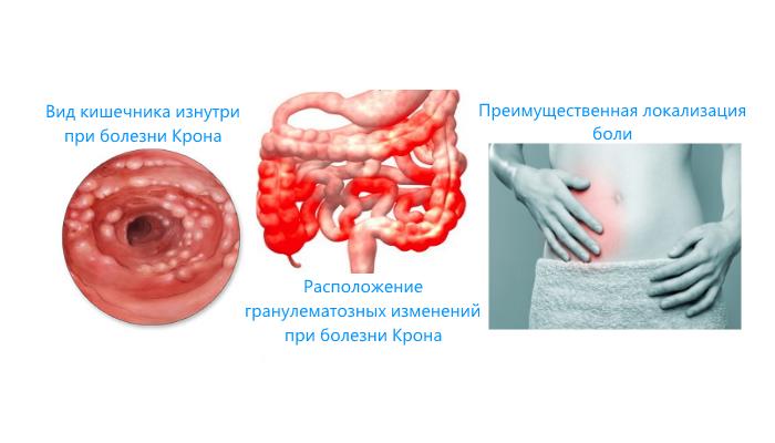 Каннабиноиды и болезнь Крона