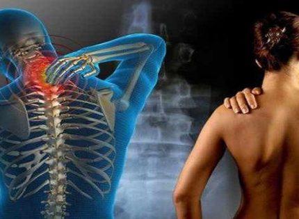 Медицинская марихуана и облегчение хронической боли