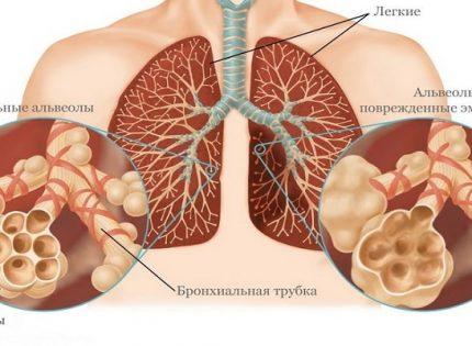 Медицинская марихуана и эмфизема.