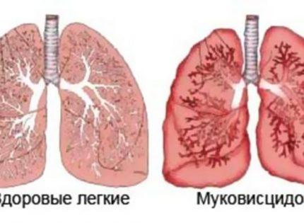 Медицинская марихуана и муковисцидоз