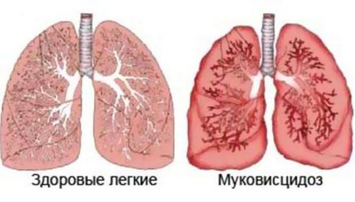 mukovistcidos