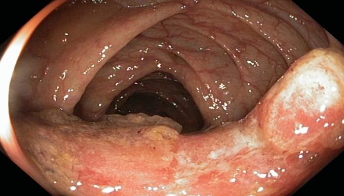 КБР и рак толстой кишки
