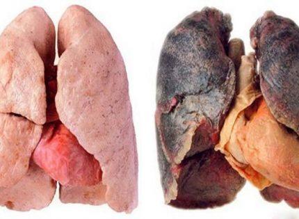 Марихуана против сигарет.
