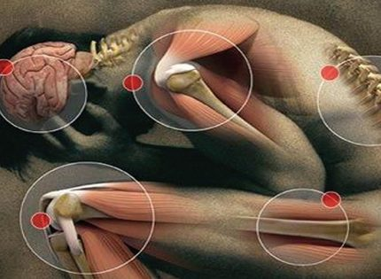Каннабис и хроническая нейропатическая боль