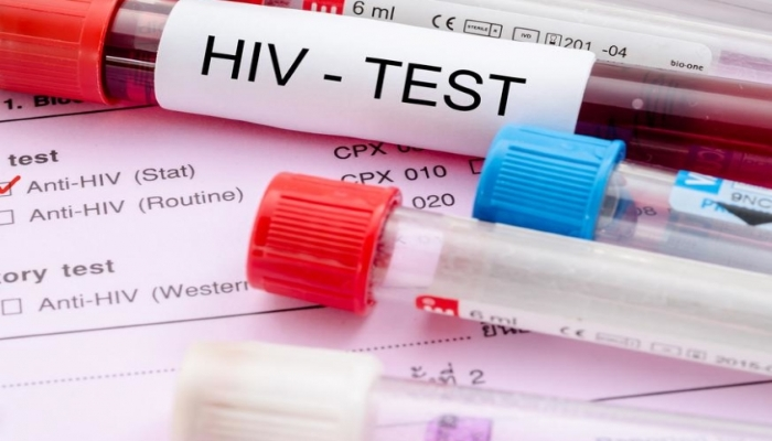 Исследование: дронабинол и ВИЧ