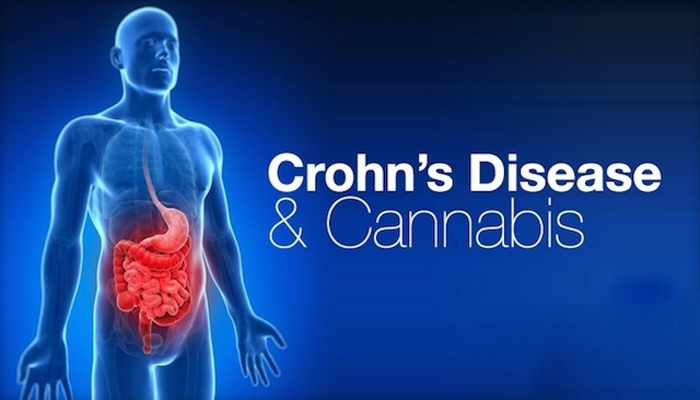 Конопля облегчает симптомы болезни Крона