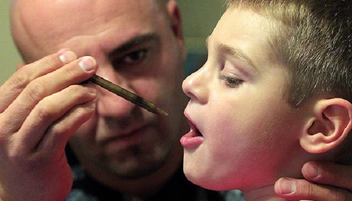 Чудесные результаты лечения каннабисом редкой формы эпилепсии