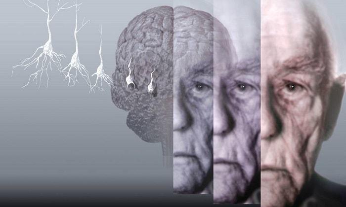 Марихуана может помочь в борьбе с болезнью Альцгеймера