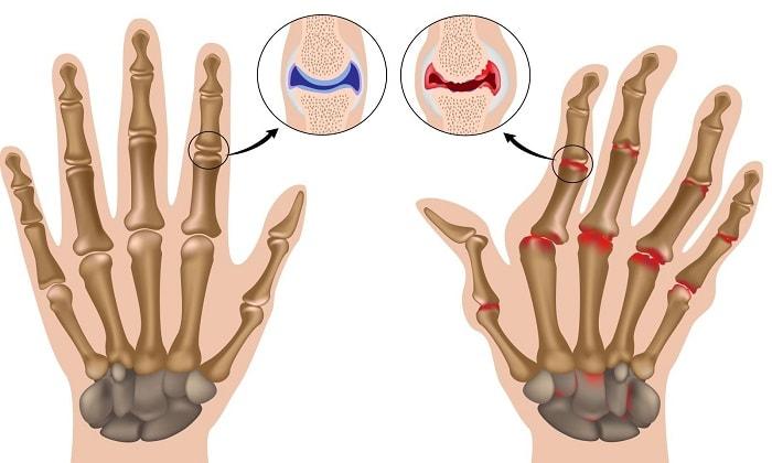 Рецепт бальзама при артрите
