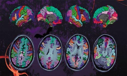 нейродегродация