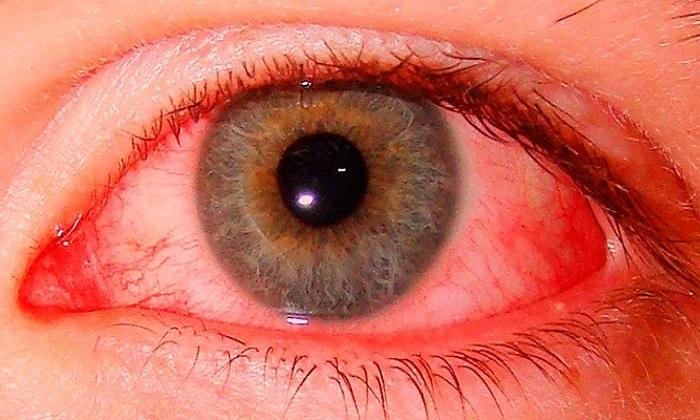 Конопля и красные глаза