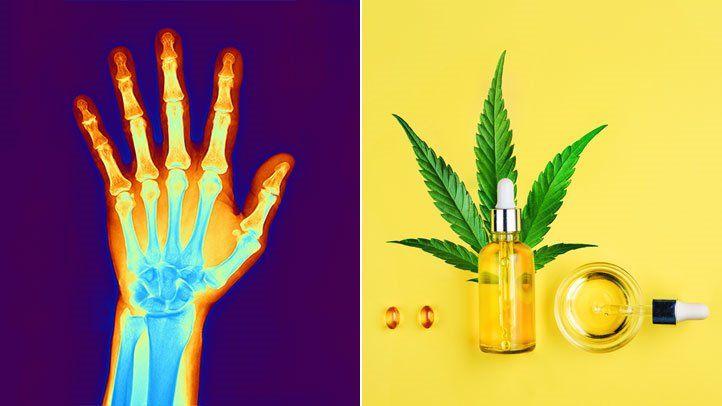 КБД и артрит